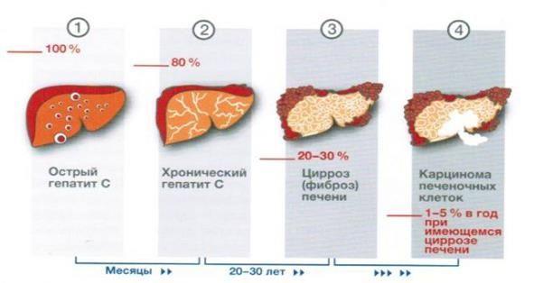 gepatit-cirroz